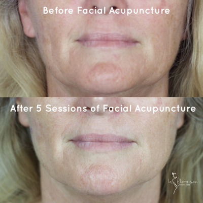 Sagging jowls and post treatment results non surgical face lift