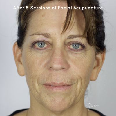 How long does it take to see results after Facial Rejuvenation Acupuncture