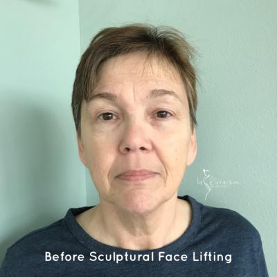 Before Sculptural Face Lifting by Eva Lu| La Floraison Wellness | Cote d'Azur