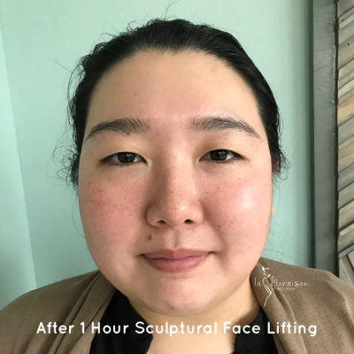 Post Sculptural Face Lifting 1 session